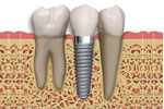 Implantes Dentarios